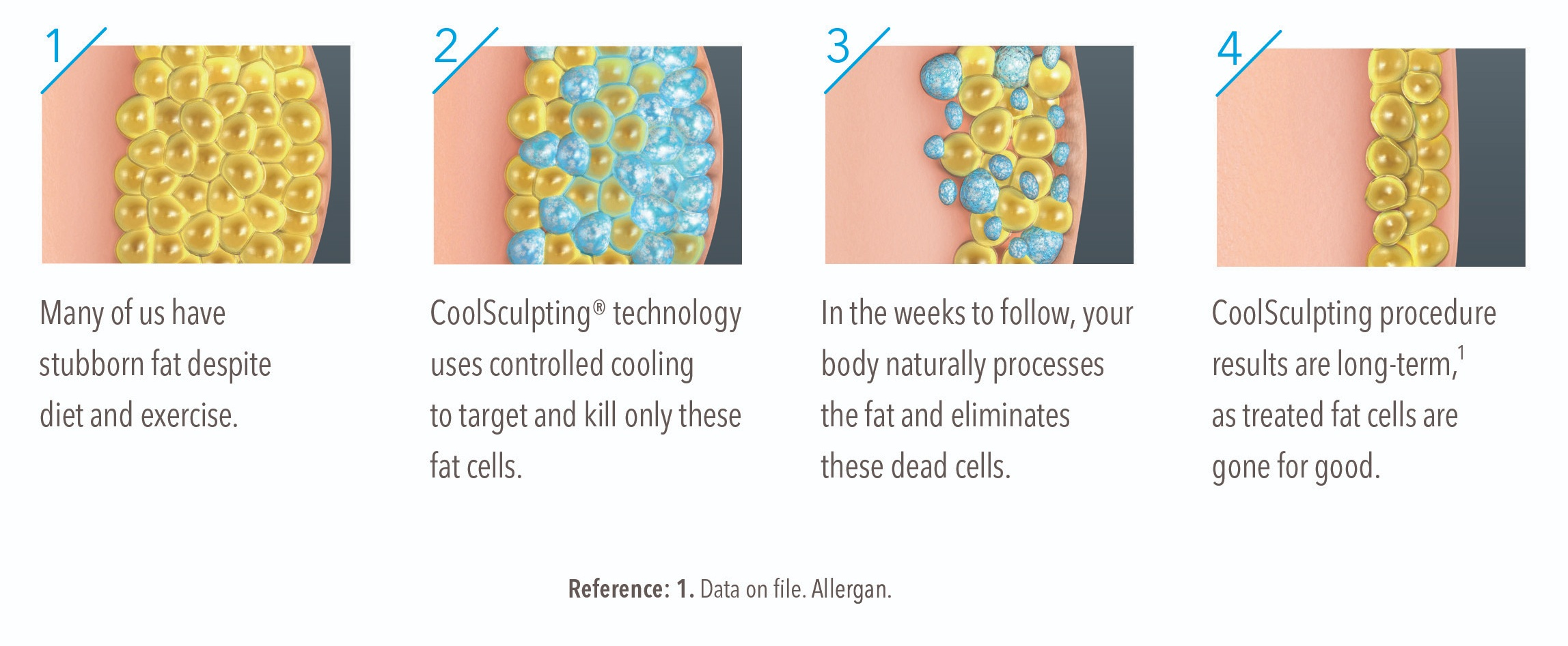 7-Illustration-how-coolsculpting-works-Medium.jpg