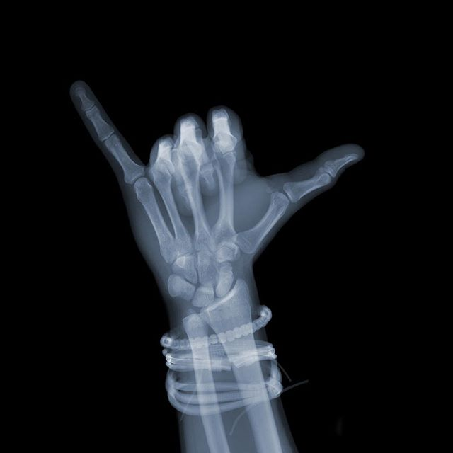 HANG LOOSE One of a small series of gestures X-ray style. Gestures interest me greatly as they transcend language,race or gender. On the inside we are all the same.  #nickveaseyxray #surfculture #xrayart #contemporaryart