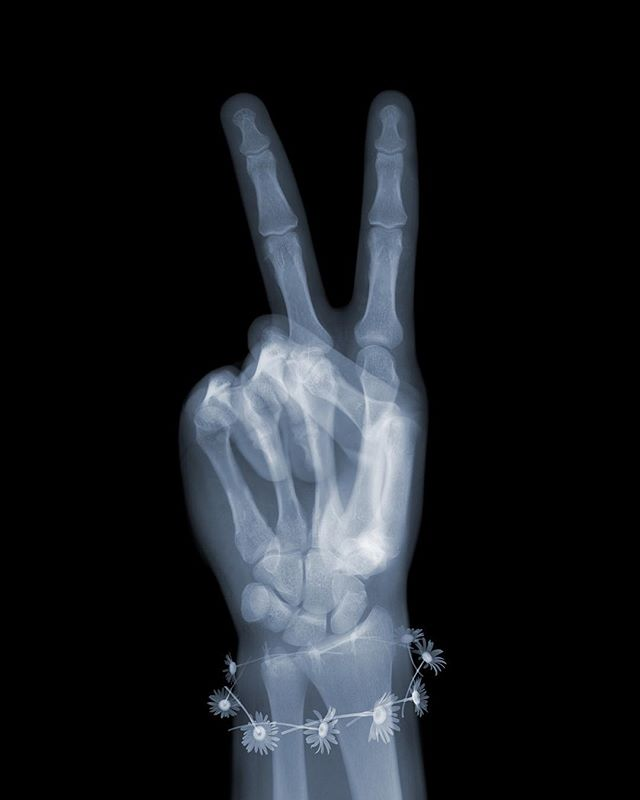 Peace. X-ray style of course. Something we all need. Part of my new series of gestures.  And as a Brit in these messy political times can I remind us of the great Winston Churchill who had guts and vision.  Something our politicians of today should try to emulate.  #nickveaseyxray #xrayart #contemporaryart  #processgallery #winstonchurchill