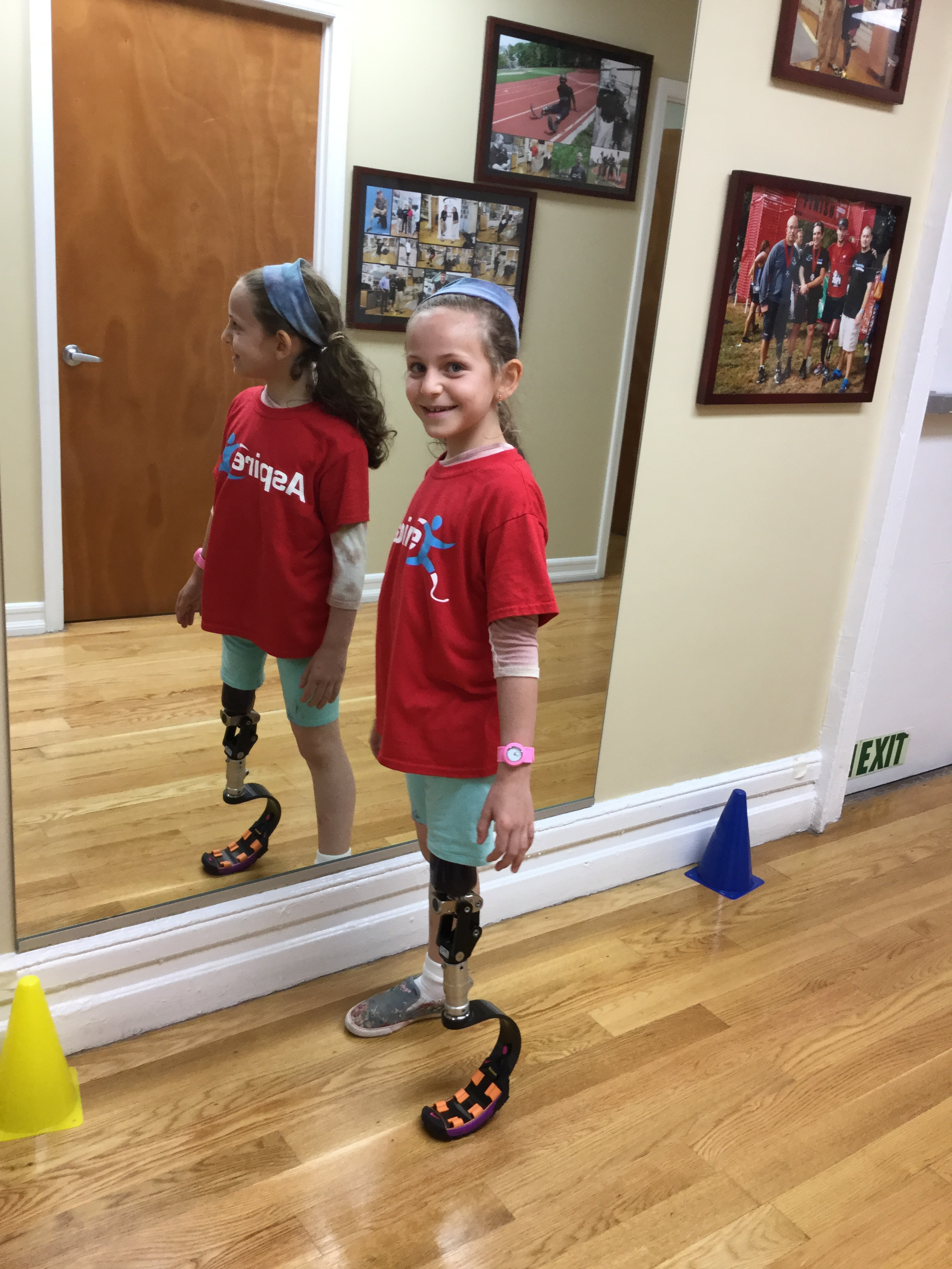 Ruth - Ruth is a congenital amputee who was born with PFFD (Proximal Femoral Focal Deficiency) ASPIRE has provided Ruth with a running prosthesis.