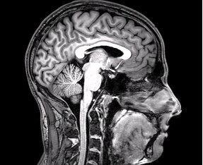 FMRI_Brain_Scan.jpg