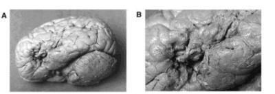 victor leborgne patient tan brain