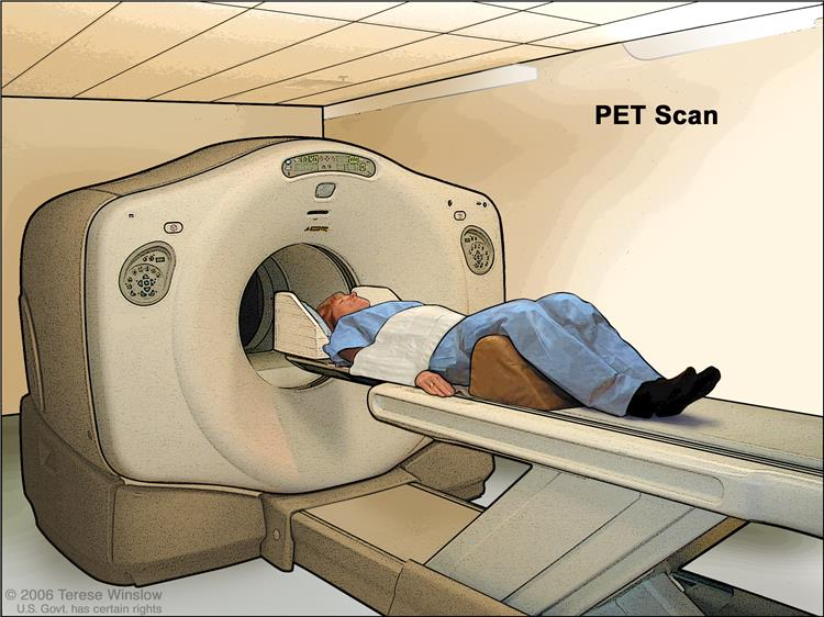 pet scan fluorodeoxyglucose