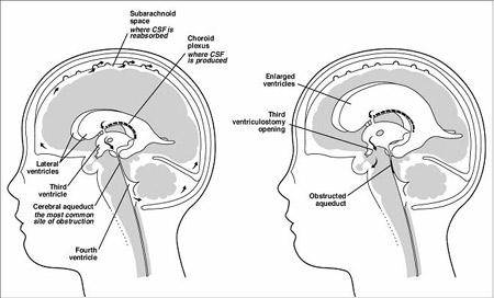 hydrocephalus ventricles