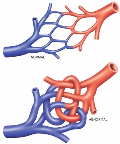 arteriovenous malformation stroke brain