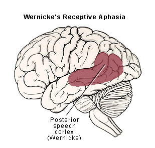 wernickes aphasia structure
