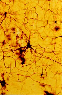 betz cells largest cells in brain