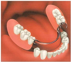 A partial denture, replacing the lower molars, fits snugly to the gums.