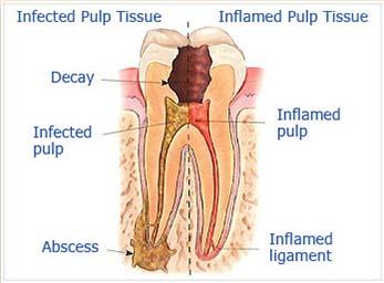 endodontic1.jpg