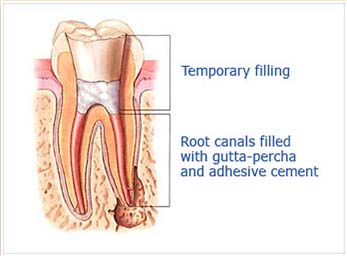 """Step 3:  After the space is cleaned and shaped, the Dr. Sidi fills the root canals with a biocompatible materials, usually a rubber-like material called """"guttapercha."""" The guttapercha is placed with adhesive cement to ensure complete sealing of the root canals. In most cases, a temporary filling is placed to close the opening. The temporary filling will be removed by your dentist before the tooth is restored."""