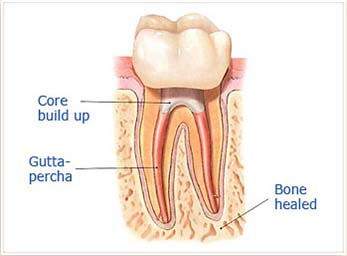 Step 4a:  After the final visit with Dr. Sidi, you must return to have a crown or other restoration placed on the tooth to protect and restore it to full function.