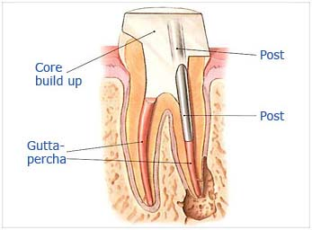 Step 4b:  If the tooth lacks sufficient structure to hold the restoration in place, Dr. Sidi may place a post inside the tooth.