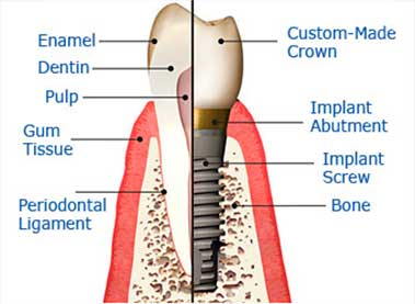 A dental implant is a titanium root form