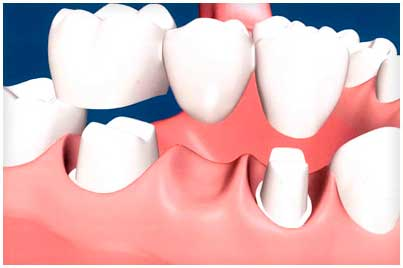 Dental bridges are highly durable and will last many years, however they may need replacement or need to be re-cemented due to normal wear.