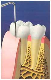 "During a dental checkup, the ""pockets"" between tooth and gum are measured. Usually deep pockets create an environment where gum diseases progress."