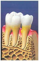 In advance stages, the gum recedes from the tooth and bone structure is lost, endangering the stability of the tooth