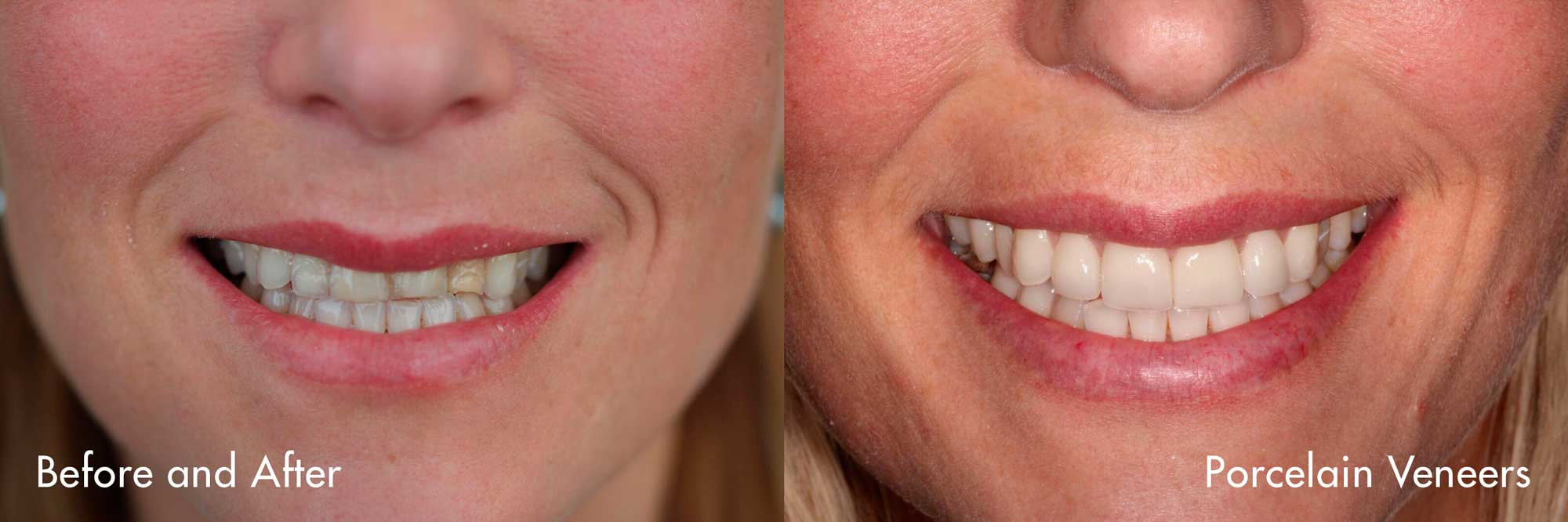 Veneers placed by Dr. Sidi in our office.   Veneers can completely reshape your teeth and smile. They can often be alternatives to crowns and the ideal solution in treating many dental conditions.