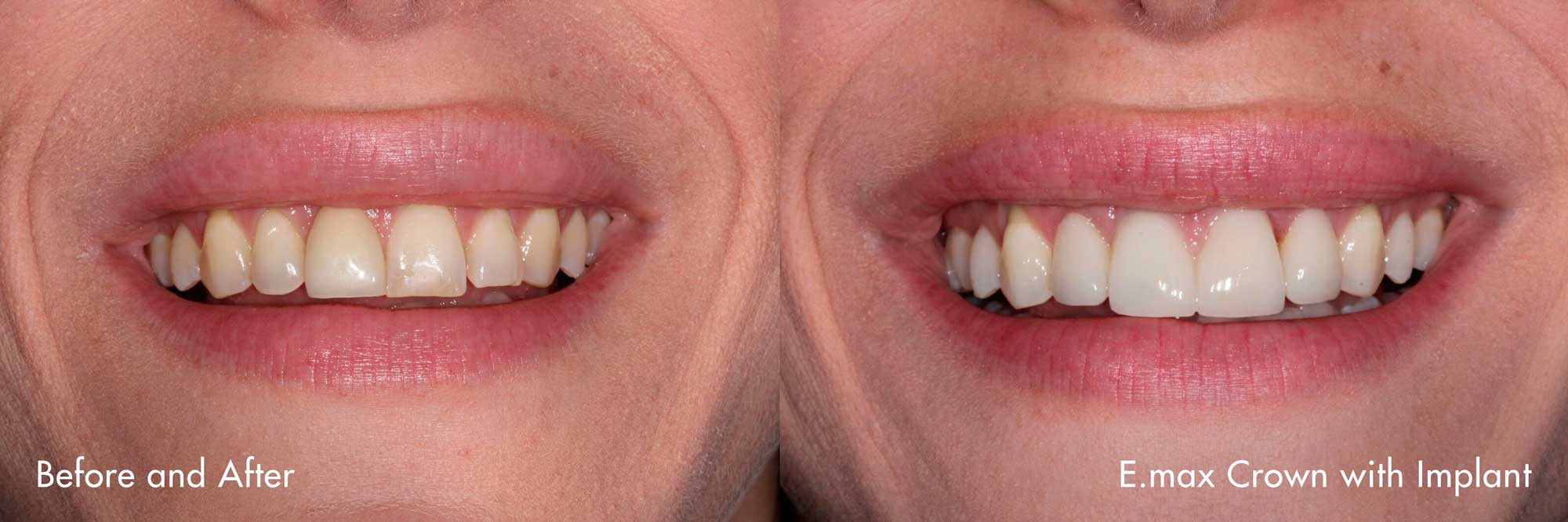 Smile created by Dr. Claude Sidi.