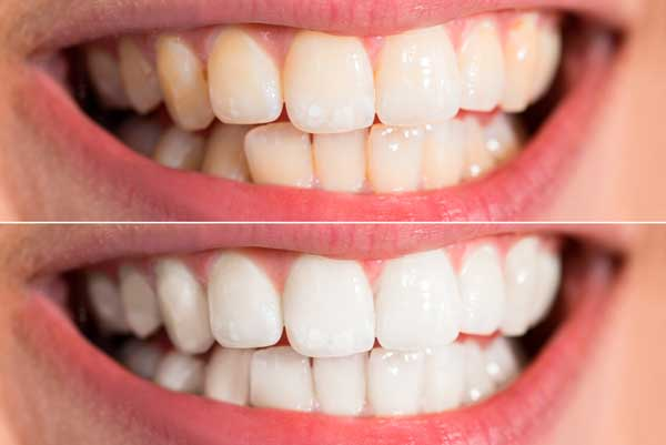 The most popular method is using a home tooth whitening system that will whiten teeth dramatically.