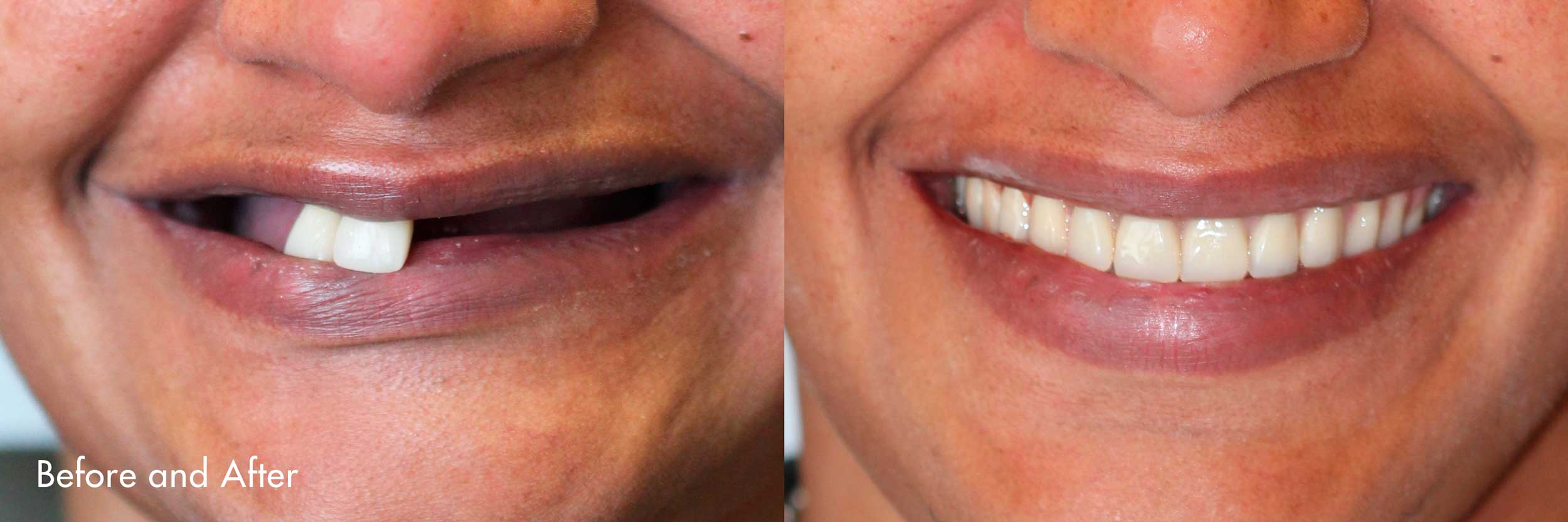 Smiles created by Dr. Sidi.