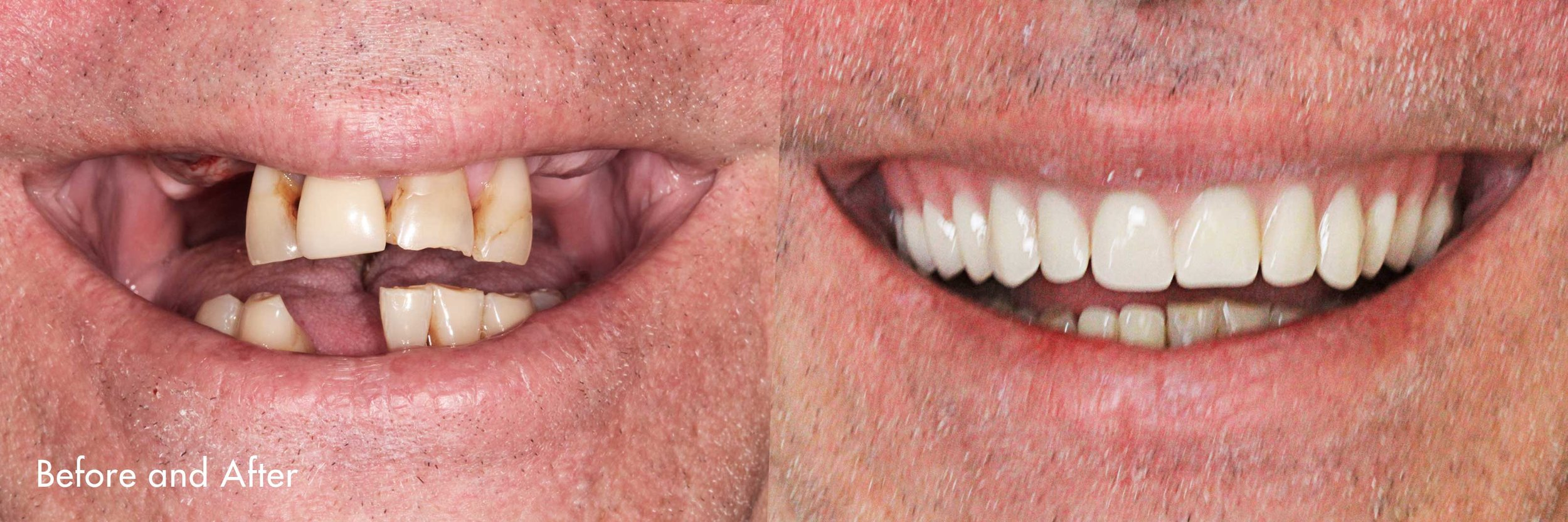 We have a denture lab on site. As a result, dentures for our patients can be constructed and prepared quickly.