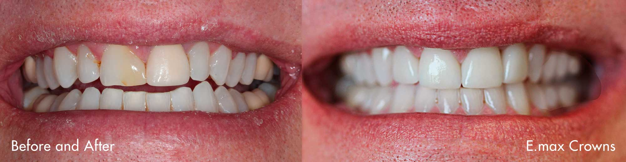 EmaxCrowns_NoImplant_Before+After.jpg