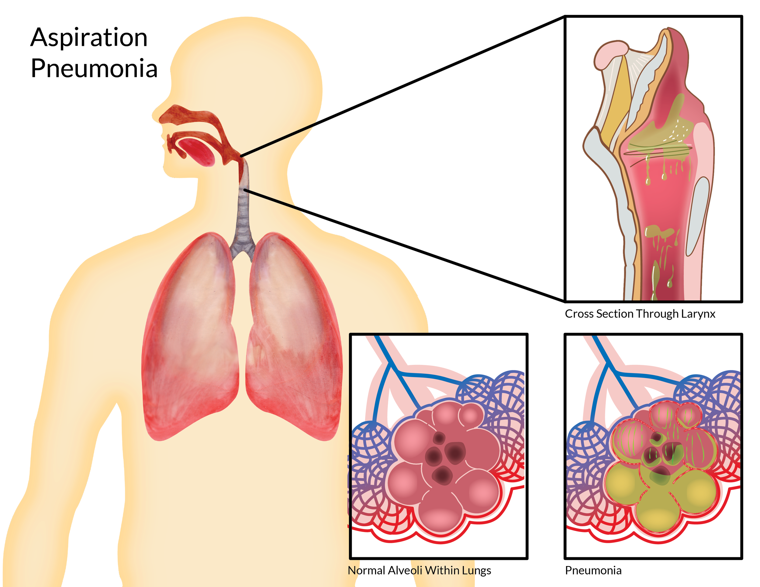 Aspiration Pneumonia-01.png
