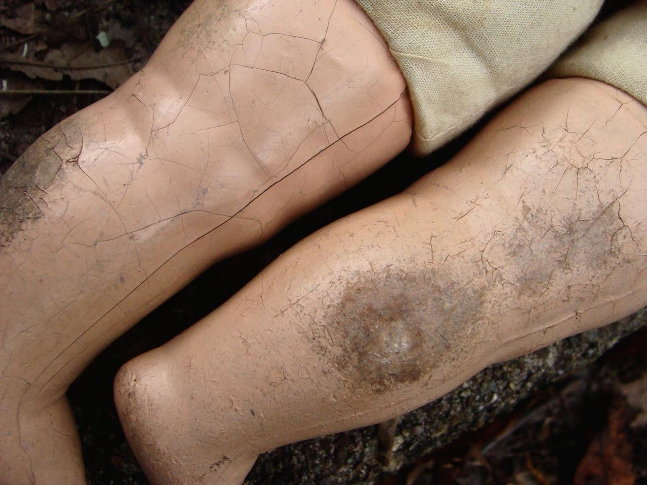 bruises+7572.jpg