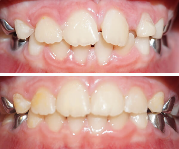 invisalign-before-and-afters.jpg