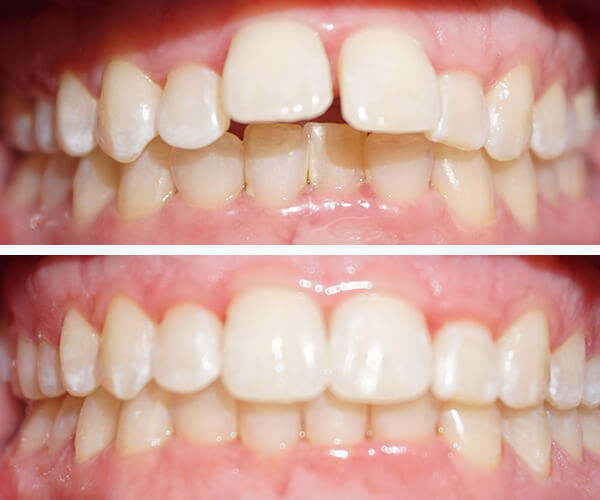 invisalign-before-and-afters3.jpg
