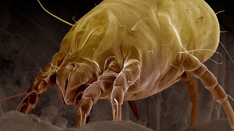 The horror of dust mites. About 1.5 million of these bugs are probably living in your mattress at any given moment.
