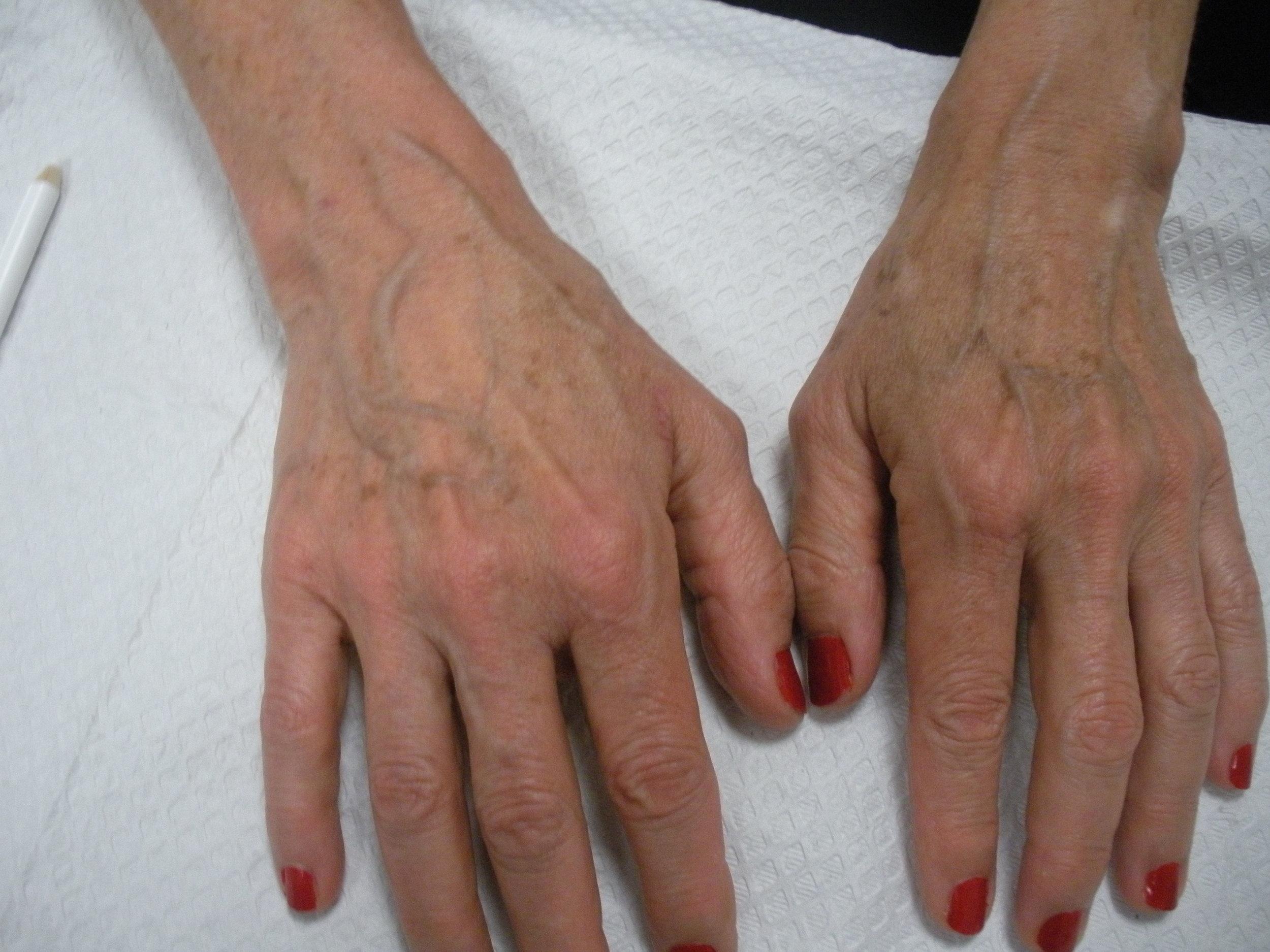 Hand rejuvenation after.JPG