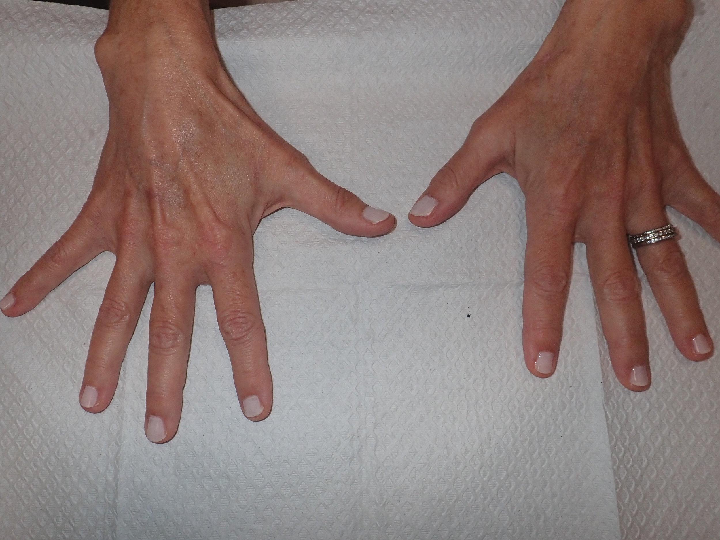 Hand Rejuv after.JPG