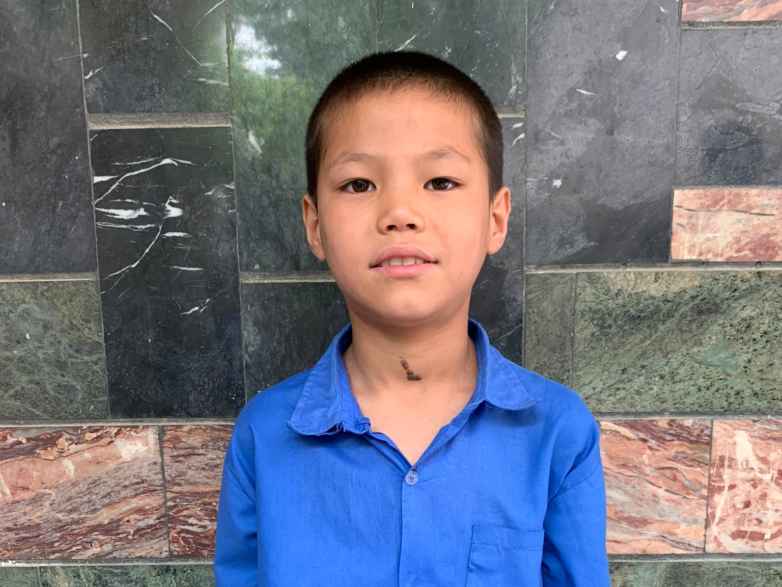 Mohammad Riza, 10 - Mohammad Riza has 7 siblings.. His mother does not have work and his father is a day laborer with a wheelbarrow.BE MOHAMMAD RIZA'S PARTNER>
