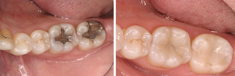 amalgam2- Middleburg VA Cosmetic and General Dentistry.jpg