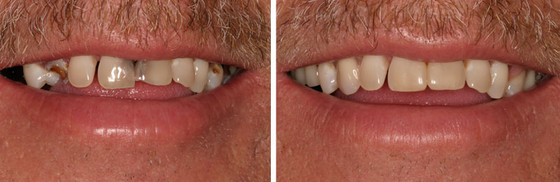 dentures1- Middleburg VA Cosmetic and General Dentistry.jpg