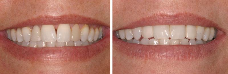 distema- Middleburg VA Cosmetic and General Dentistry.jpg