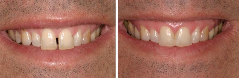 distema2- Middleburg VA Cosmetic and General Dentistry.jpg