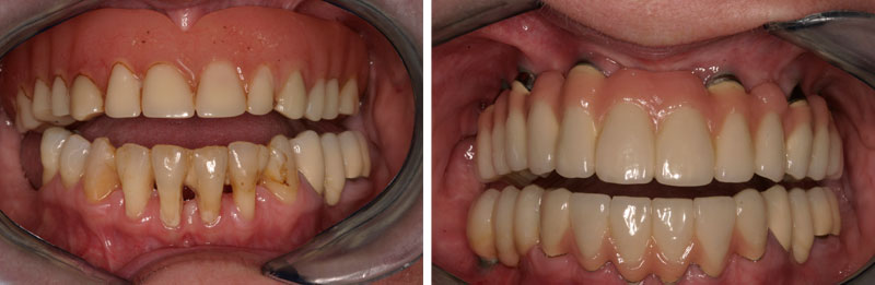 implant_fullarch1- Middleburg VA Cosmetic and General Dentistry.jpg