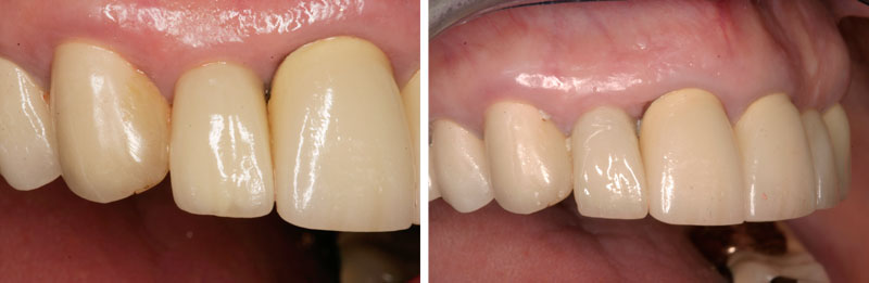implant_single1- Middleburg VA Cosmetic and General Dentistry.jpg