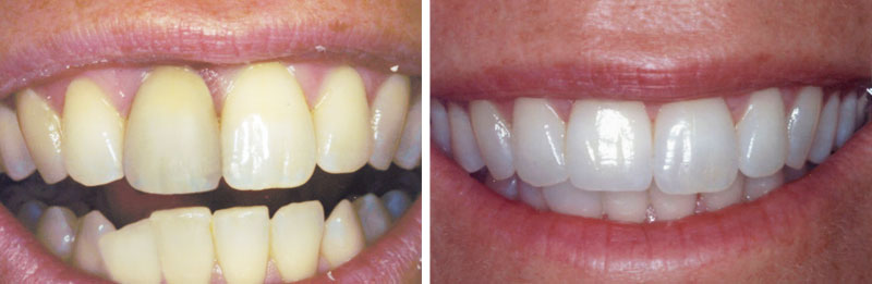 implant_single3- Middleburg VA Cosmetic and General Dentistry.jpg