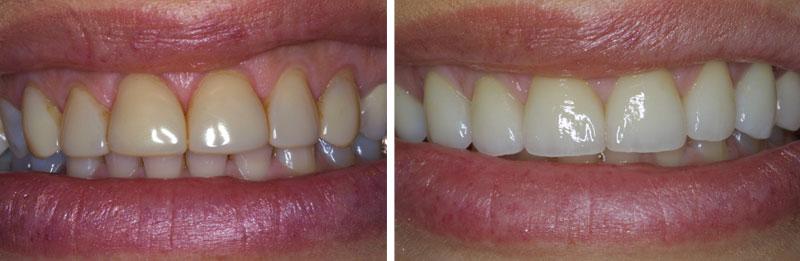 veneer_ceramic1- Middleburg VA Cosmetic and General Dentistry.jpg