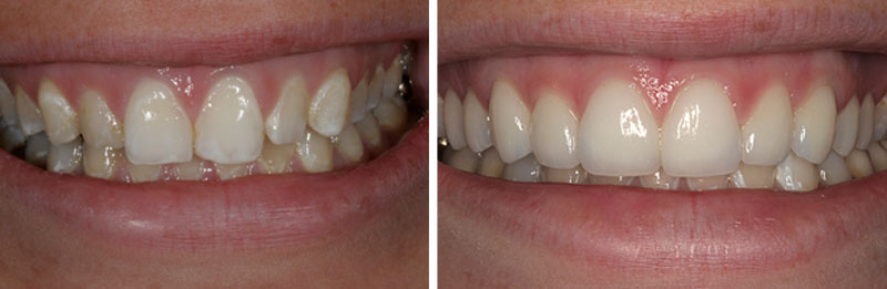 veneer_ceramic2- Middleburg VA Cosmetic and General Dentistry.jpg