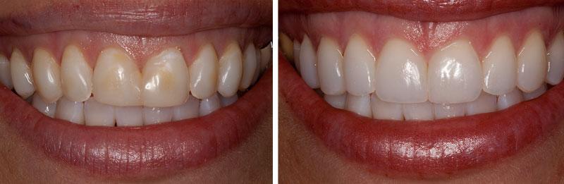 veneer-resin2- Middleburg VA Cosmetic and General Dentistry.jpg