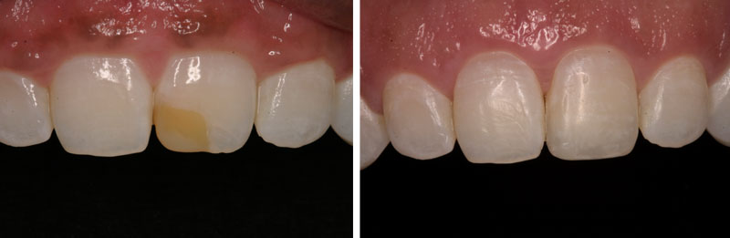 gingivectomy- Middleburg VA Cosmetic and General Dentistry.jpg