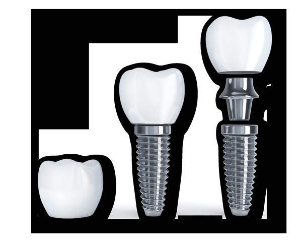 dental-implants-47535068_xl.png