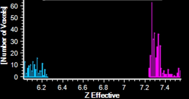 Spectral curves show clearly different Z-effective of the gallstones (blue) and bile (magenta)