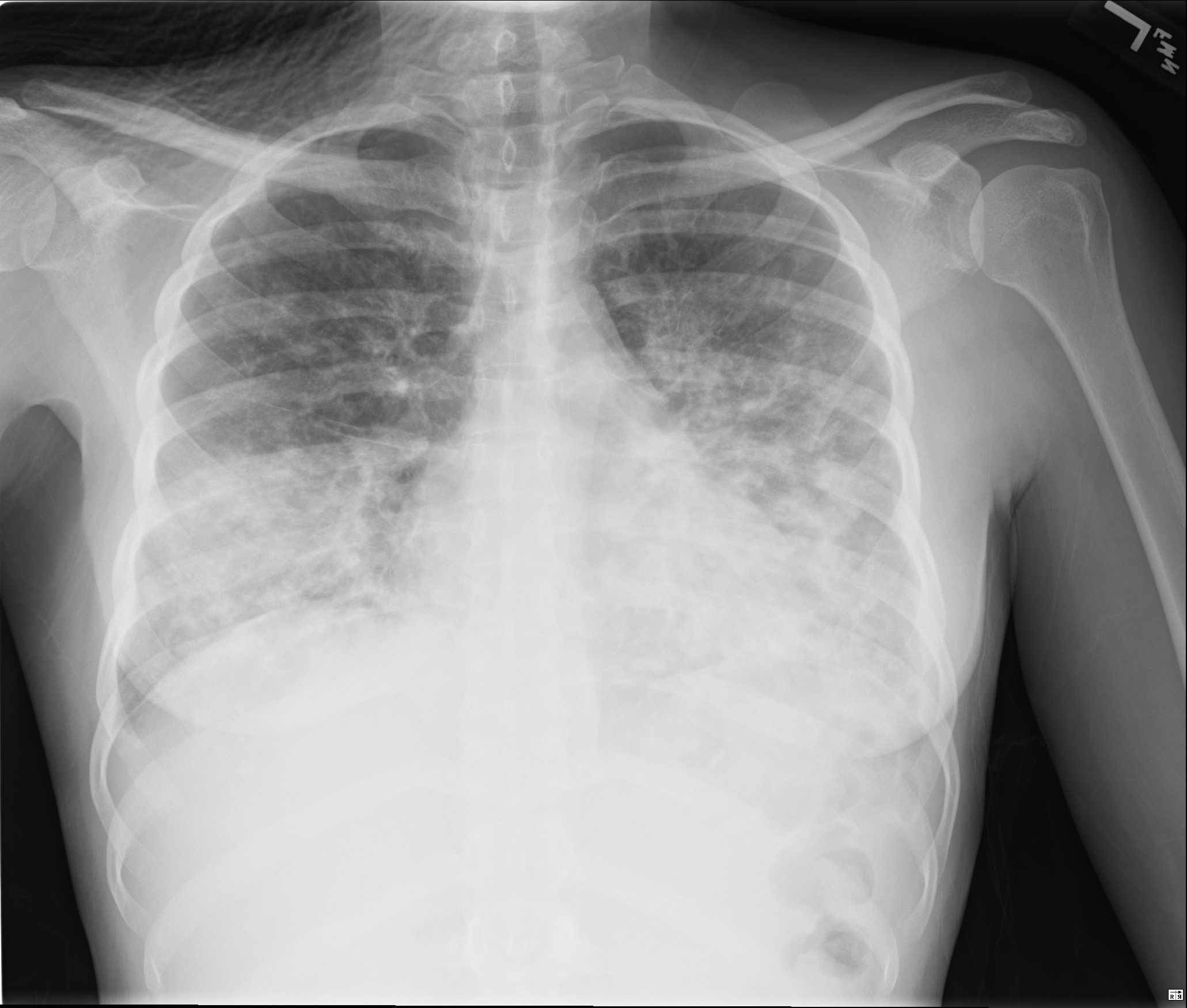 CXR with diffuse infiltrates