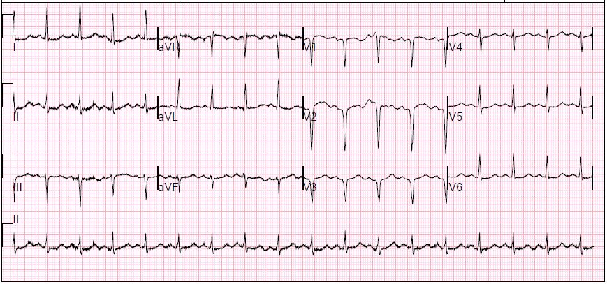 EKG shows Q waves consistent with old anteroseptal MI