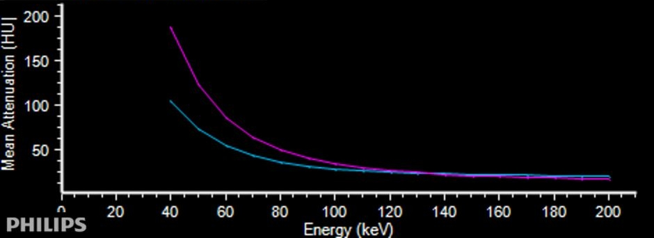 Attenuation curve of adenoma (magenta) and lymph node (blue) are quite different